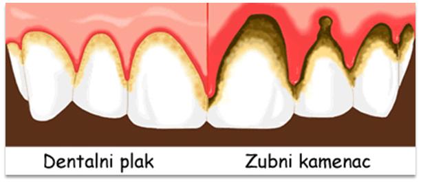 Zubne fasete da ili ne